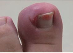 ingrown nails